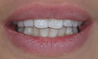 Affordable Invisible Orthodontics