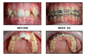 Wow! My Teeth Have Moved So Much in Just 17 Weeks!