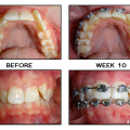 Very Happy With Progress, Minimal Pain